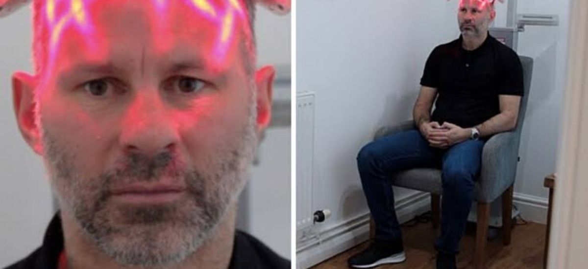 After 'stress of played for man Utd Ryan Giggs undergoes hair transplant
